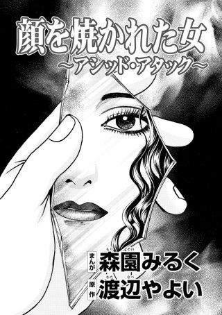 顔を焼かれた女 ~アシッド・アタック~(単話版)
